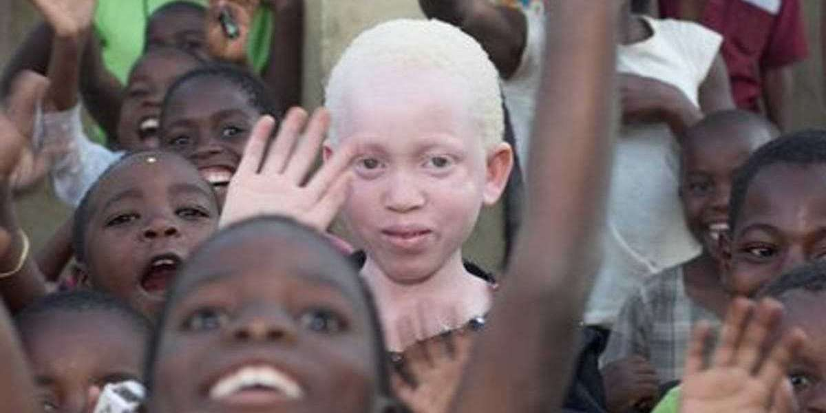 African Albinos – They Look White But They Are Black